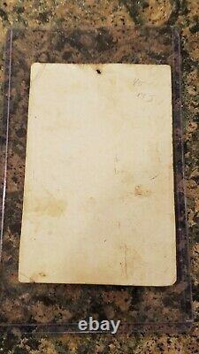 Civil War Soldier CDV Image ID'd Alfred Stratton 147th NY Double Amputee
